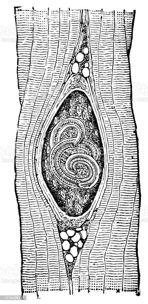 Trichinella fejlődési diagram)