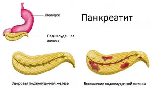 paraziták hasnyálmirigy kezelésben
