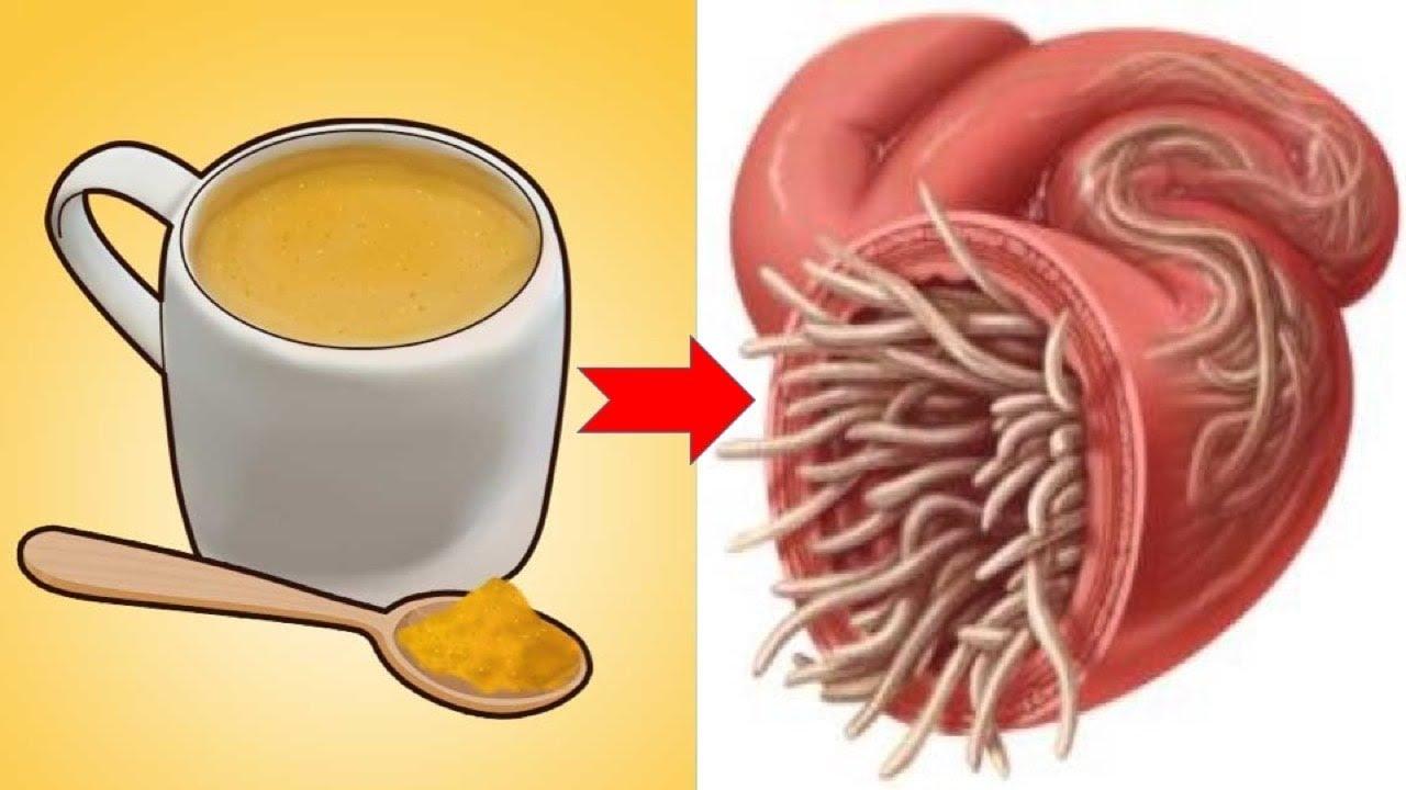 Pinworm férgek gyógynövényes kezelése, Hány pinworms él az emberi testben Pinworms él
