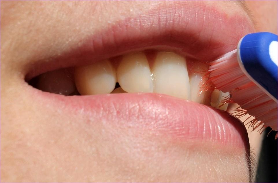 Kellemetlen szájszag okai | BENU Gyógyszertárak
