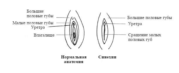 lehet az enterobiosishoz)