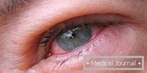 Trichinosis - mi ez? Tünetek, fertőzés, kezelés, megelőzés módjai