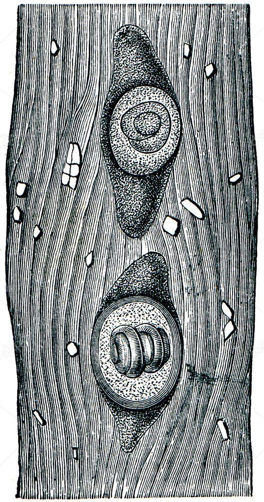 Trichinella kapszula