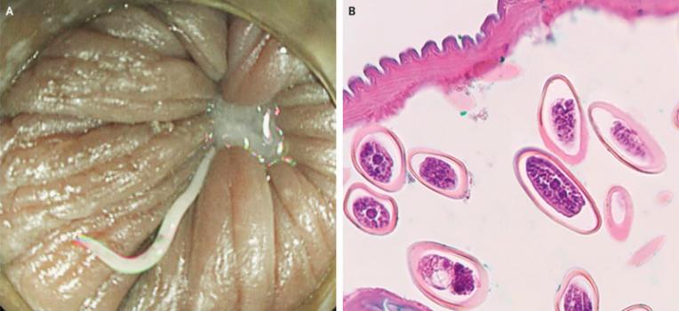 pinworms fénykép mikroszkóp nélkül