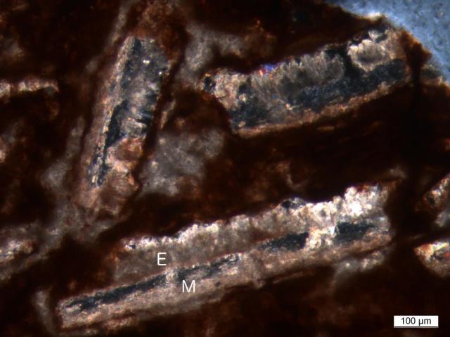 ostorféreg tojás morfológiája)