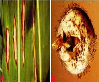 Szálak egy felnőtt székletében A pinworm tojás érlelődik