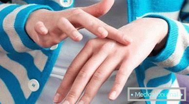 a paraziták tünetei az emberi test kezelésében Giardiasis jelei gyermekeknél
