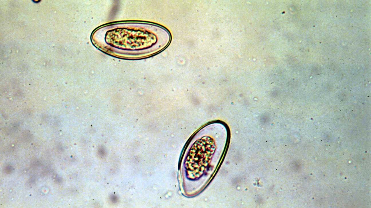 hogy néz ki a női pinworms)