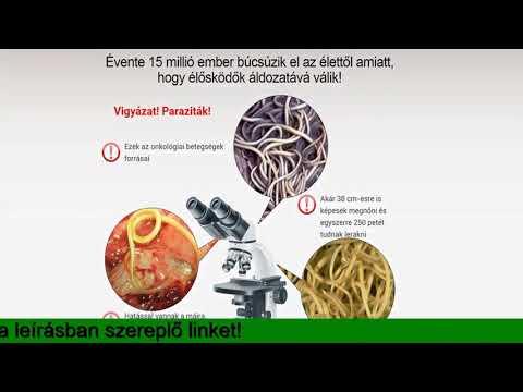 Tranzit parazita tisztítás, Helminthiasis gyógyszeres kezelés