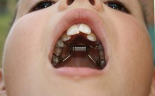 Mik lehetnek a rossz szájszag okai? Hogyan előzhető meg? Plakk a nyelven okozza a rossz leheletet