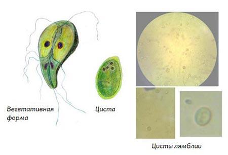 Macmiror vélemények a giardiasis fórumról