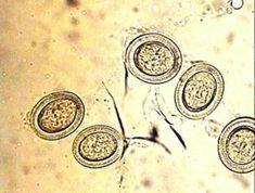 tojások enterobiosis)
