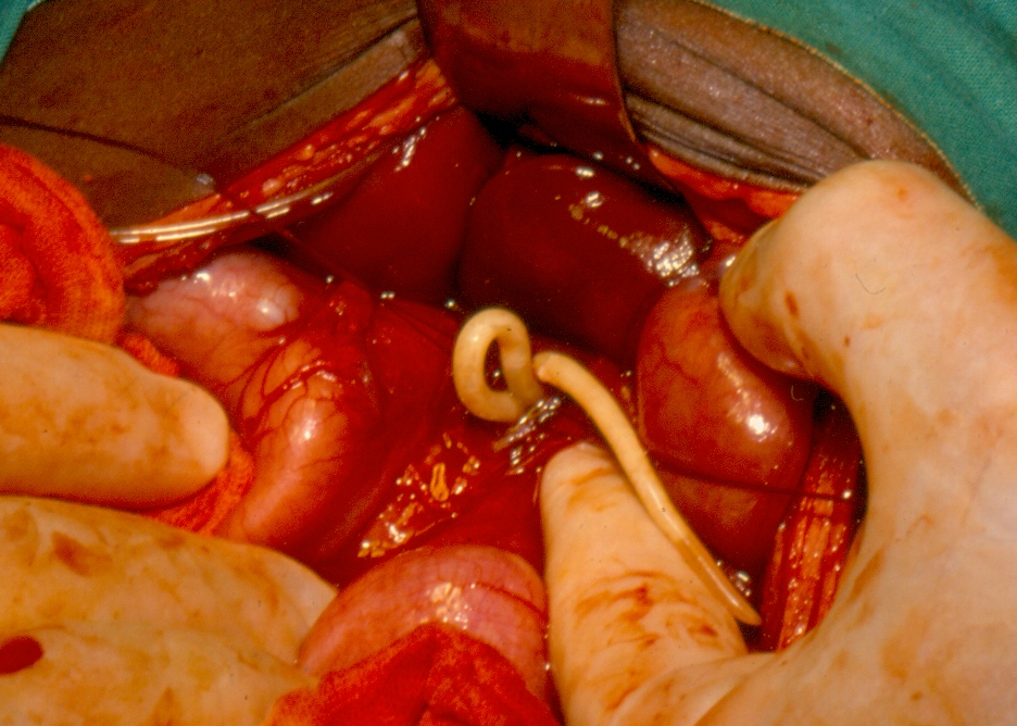 helminthiasis ascariasis enterobiasis)