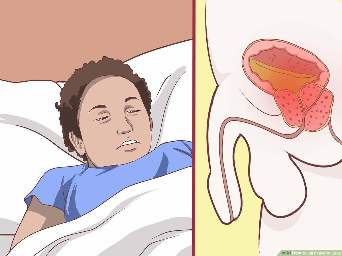 Tojások enterobiosis