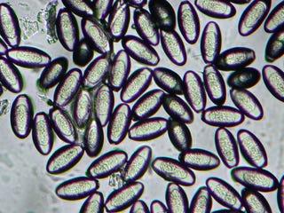 Pinworm tamponok Hajóút fénysugár