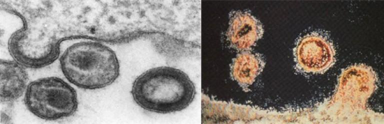 helmintikus protozoális fertőzés)