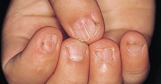 parazita artritisz kezelése