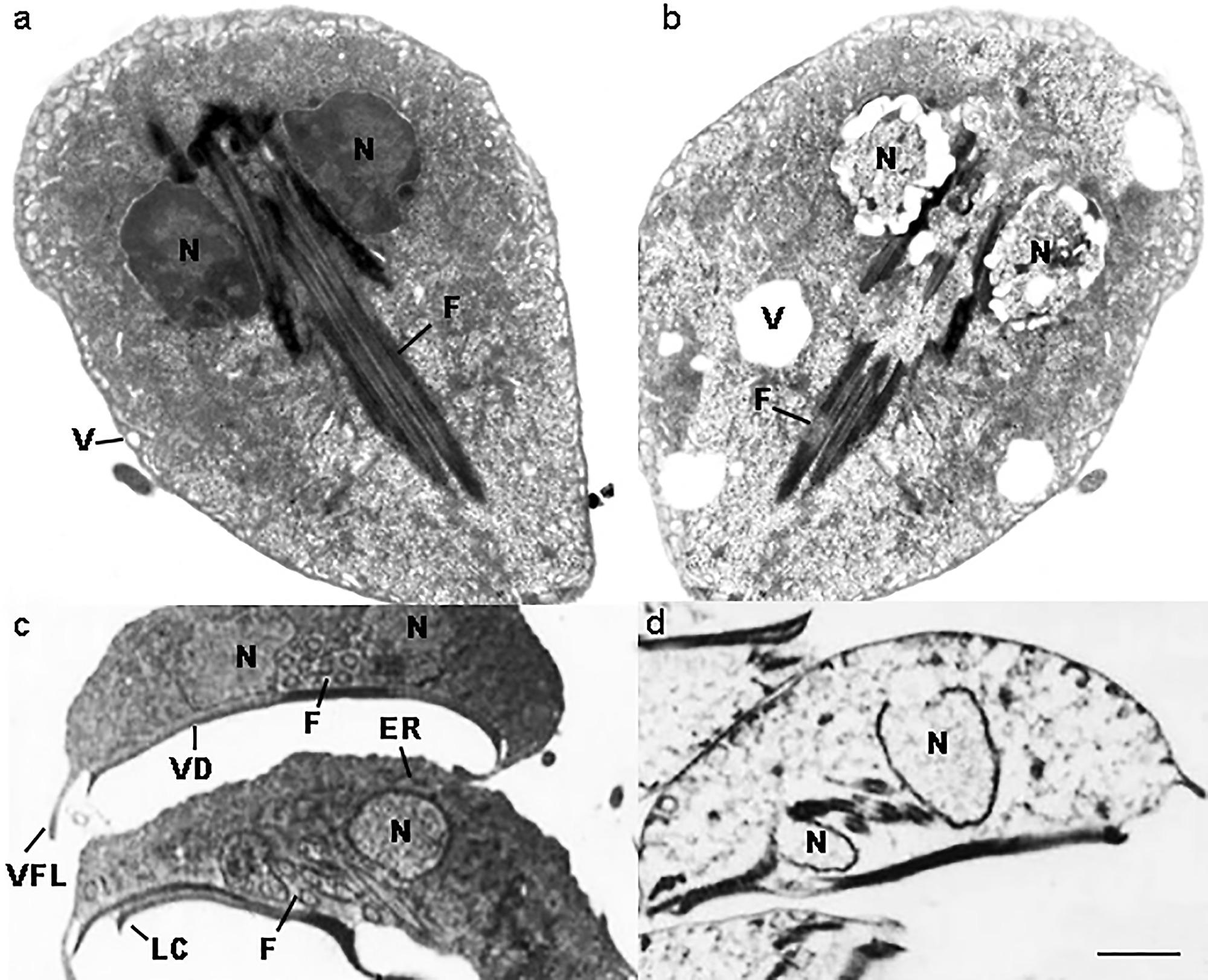 Untreated giardia in humans. Ogulov giardiasis ,Találtam férgeket a székletben