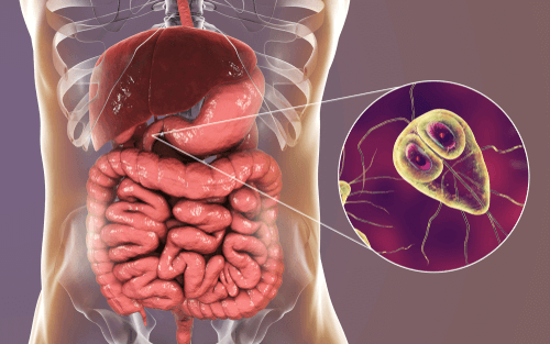 giardia infection in adults