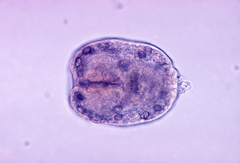 szalagféreg echinococcus)