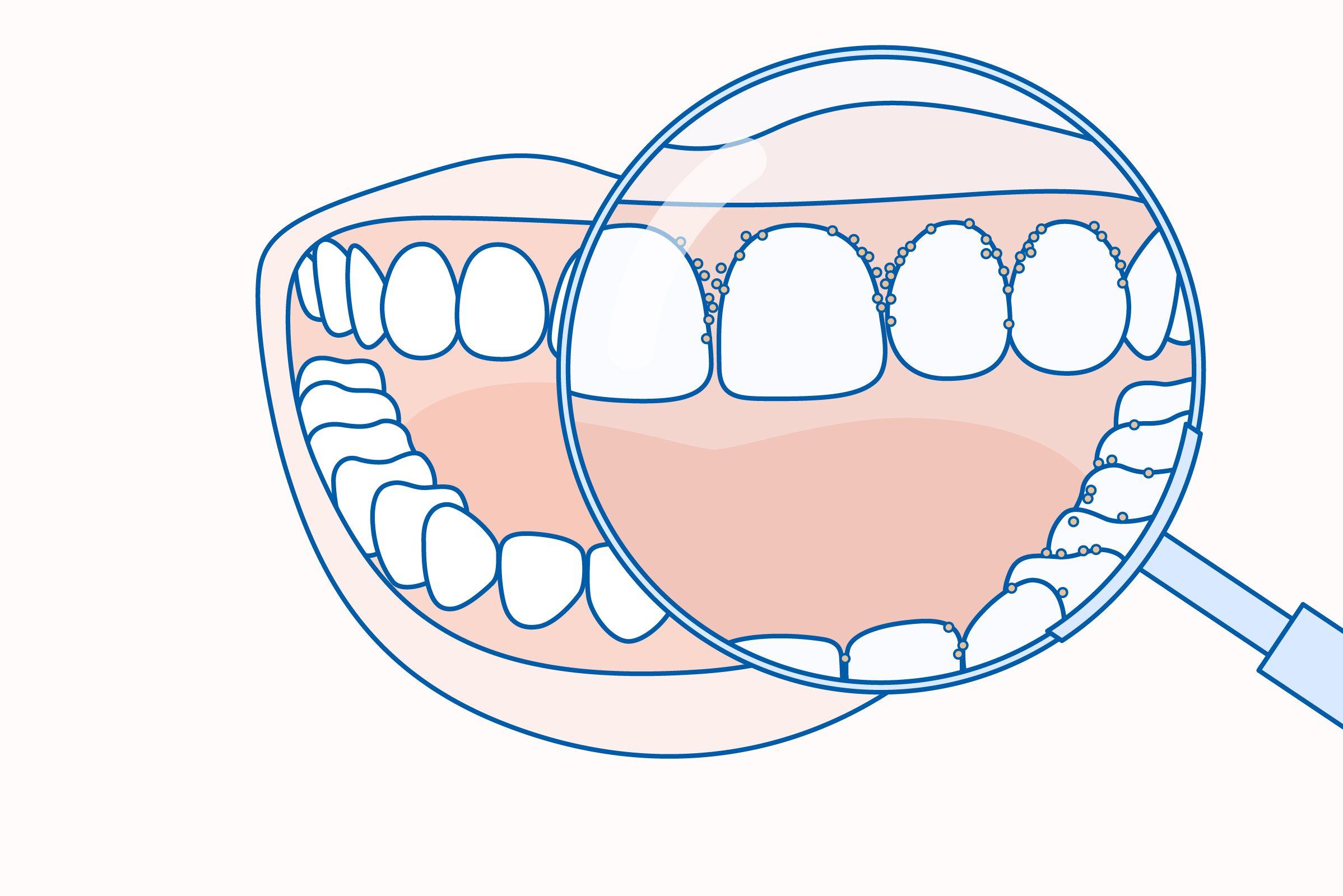 a nyelv plakkja rossz leheletet okoz