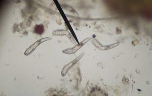 paraziták a székletben)