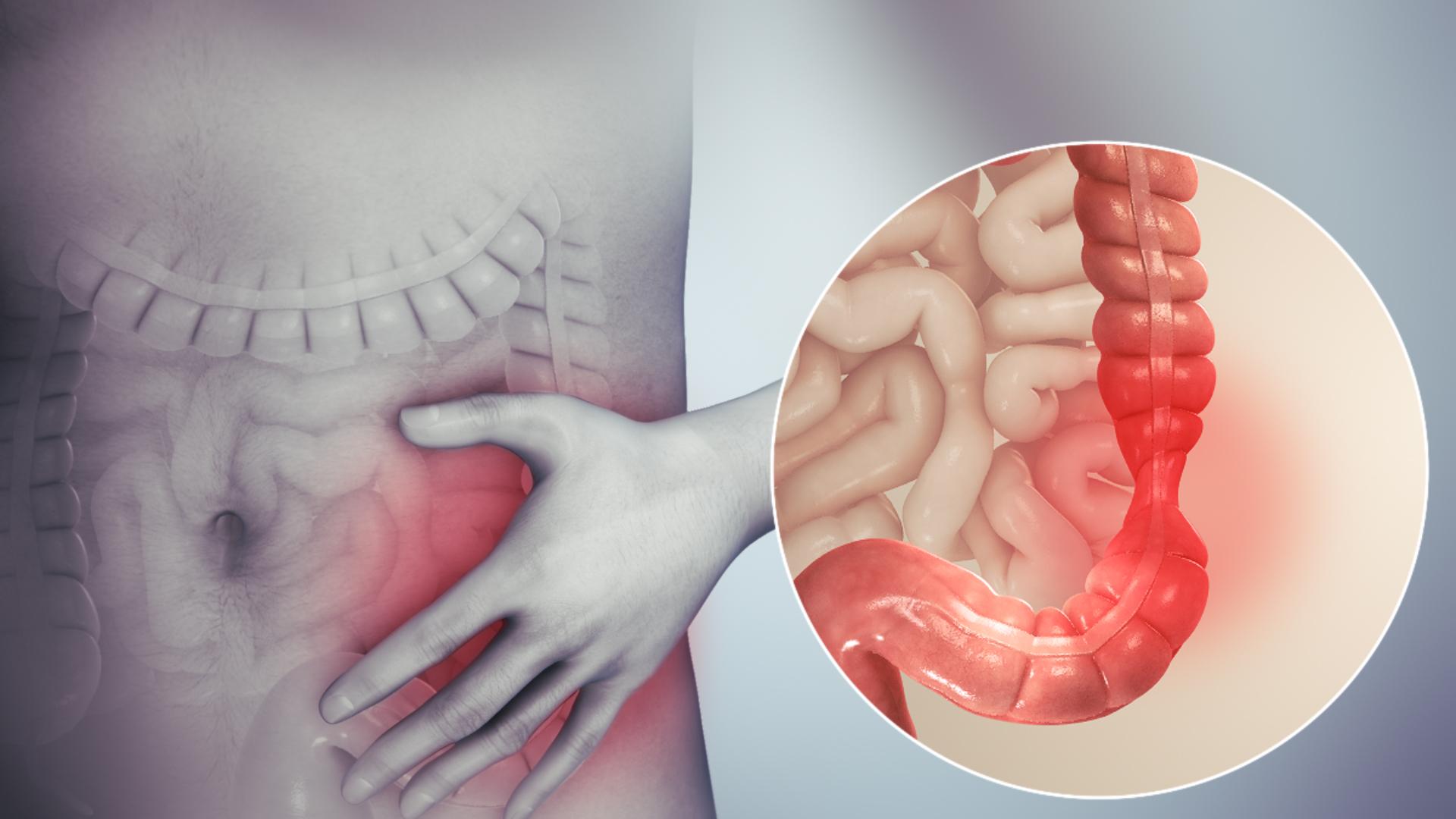 Giardia in humans nhs, Hpv szemolcs elleni ecsetelo