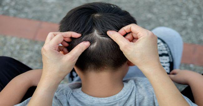 férgek gyermekgyógyászati kezelés során