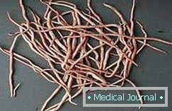 gyógyszerek enterobiasis és ascariasis kezelésére)