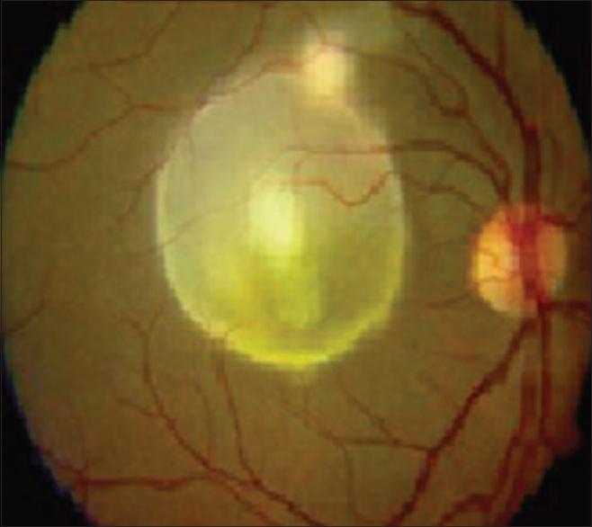 giardia ocular