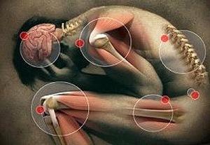 Melyek a férgek tünetei helminthosporium sorghicola