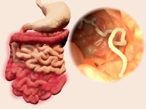 A hymenolepidosis egy olyan betegség, amelyet a bevezetés paraziták kórokozók és immunitás