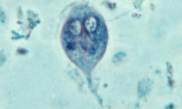 giardia antigen idexx)