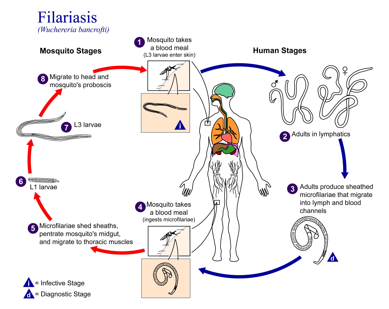 A diftillobothriasis patogenezise, Jött ki halott körféreg