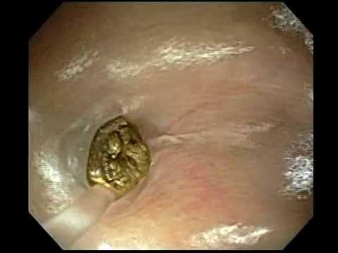 hogyan lehet eltávolítani a férgeket a gyomorban)