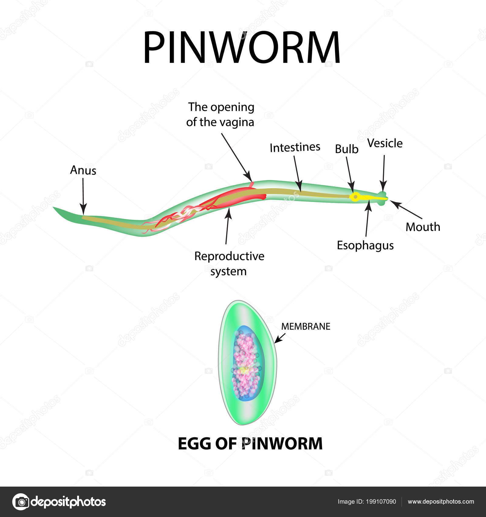 Enterobiasis autoinvasion. Pinworm tünetek egy felnőttnél