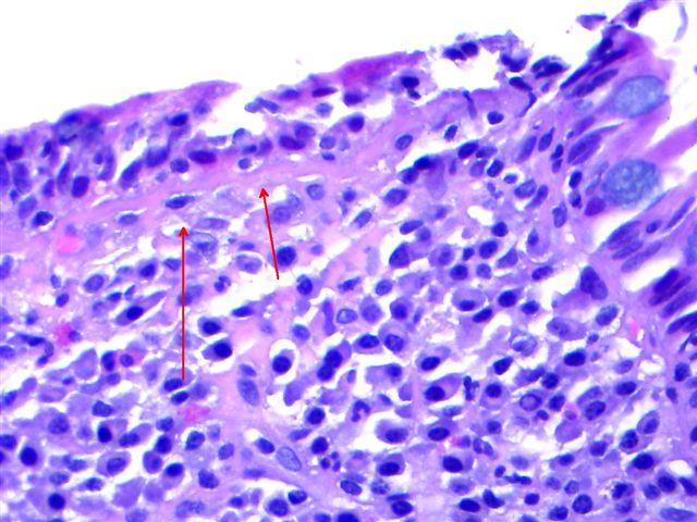 giardiasis pathology outlines)