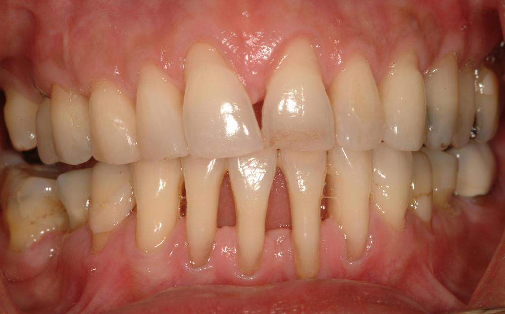 Dentálhigiénia II. - A fogkőtől az aftáig, a fogfehérítés módjai és a szokatlanabb szindrómák