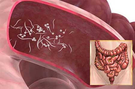 hogyan kell kezelni a pinworms et felnőtteknél)