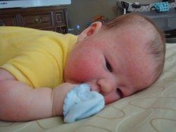 ekcéma kezelése babáknál)