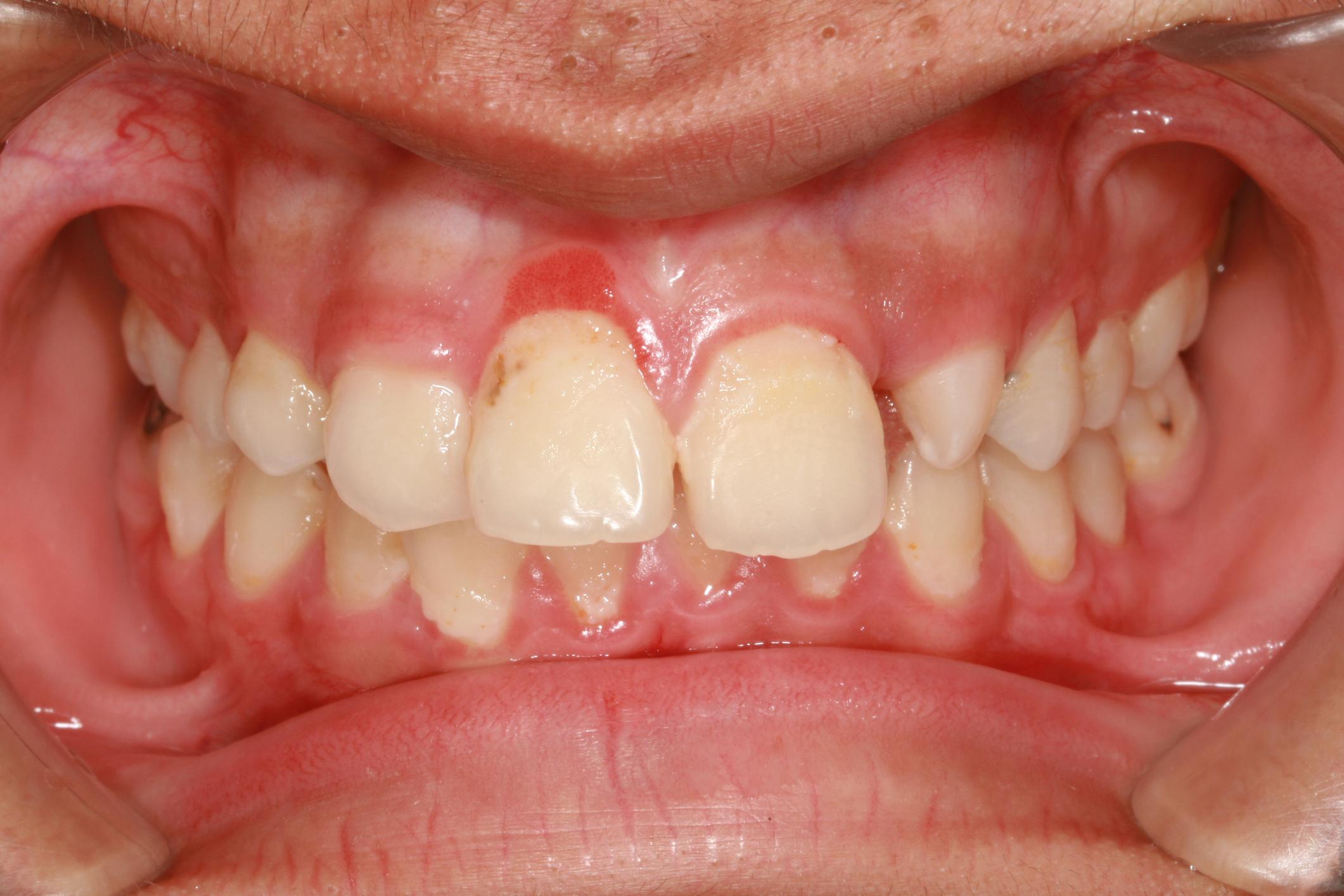 gennyet okozhat a szájból