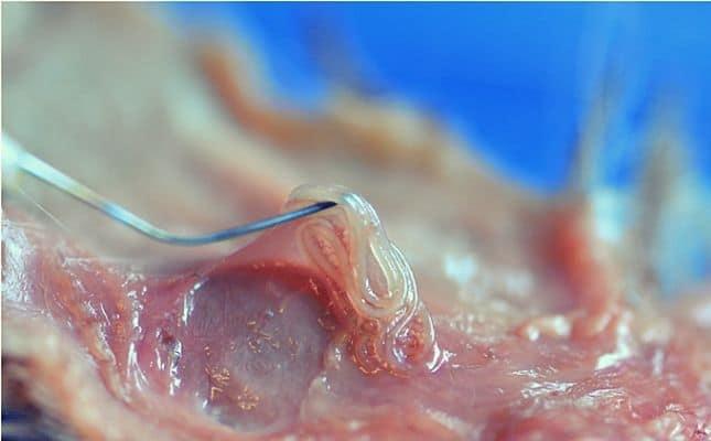 Fertőzött pinworms ek