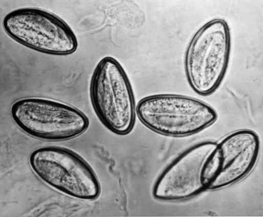 A pinworm tojás hőmérsékleten meghal)