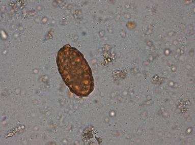 giardia paraziti hashajtók férgek számára
