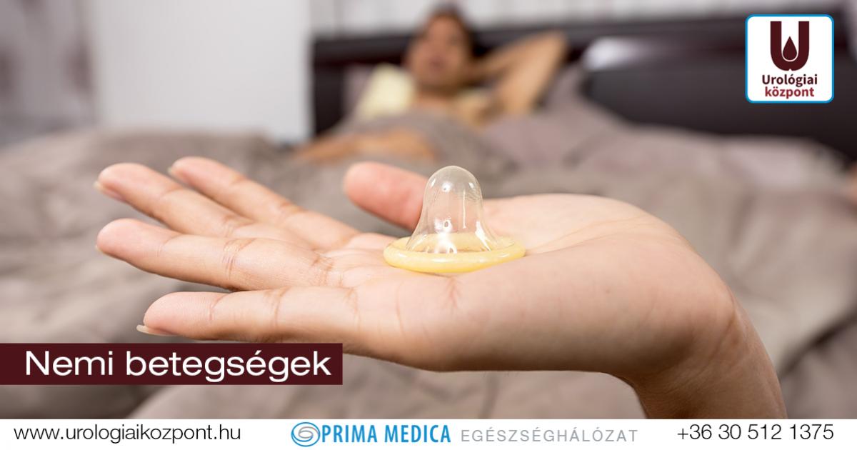 Ureaplasma és Mycoplasma fertőzések – Biztonsárays.hu