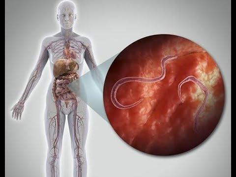 Hogyan lehet kimutatni a szalagféreg a testben. Milyen paraziták pirulái a leghatékonyabbak