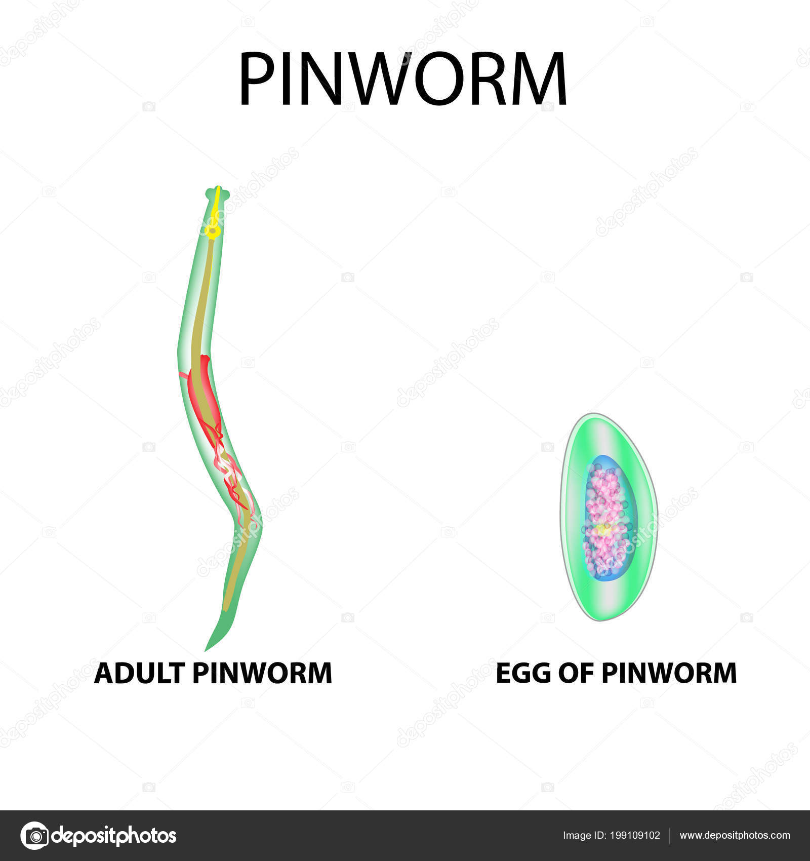 Pinworm ciklus, Enterobiasis (pinworms)