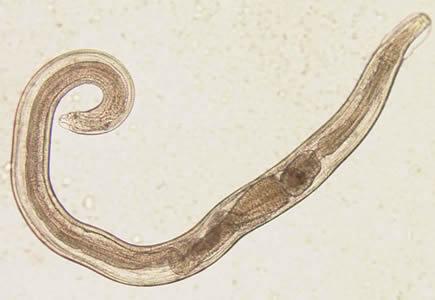 pinworms enterobius vermicularis
