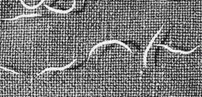 eozinofília paraziták