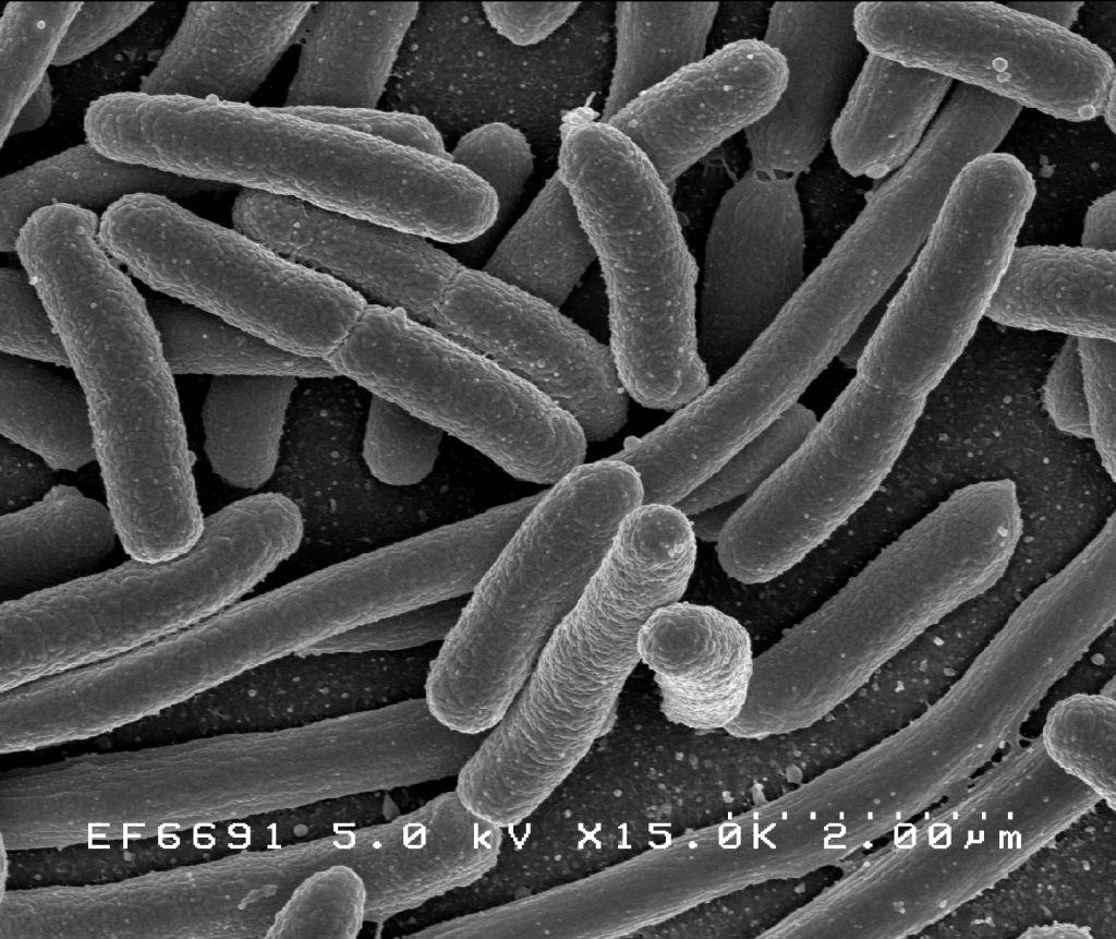 Fertőzéseink, fertőző betegségeink